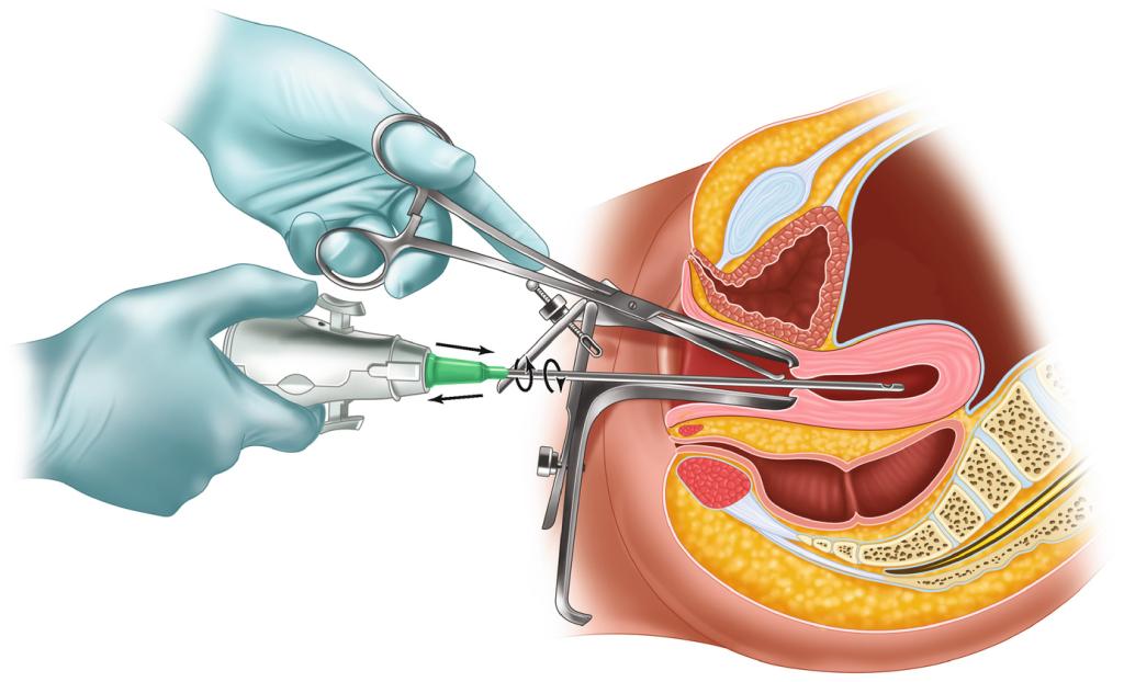 Manual Vacuum Aspiration (MVA) Abortion